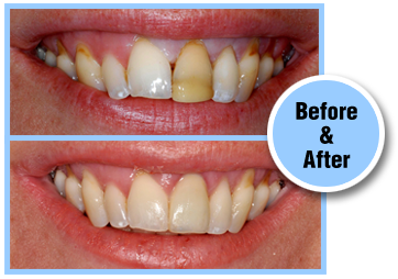 Smile Makeover Gallery Bridgewater NJ