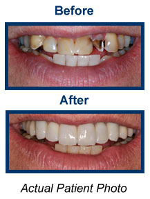 Dental Veneers Dentist Bridgewater NJ