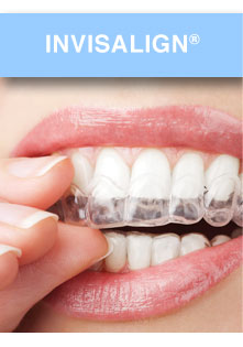 Invisalign Dentist Bridgewater NJ