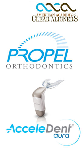 Propel Orthodontic AcceleDent System