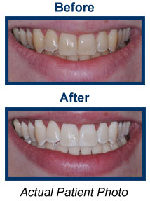 Teeth Whitening Dentist Bridgewater NJ